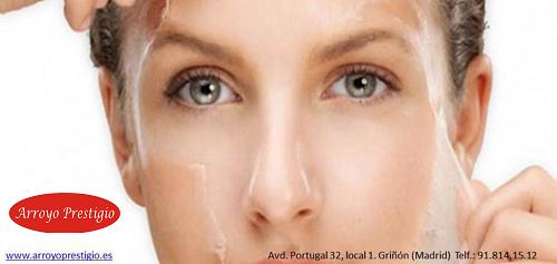 peeling-acido-glicolico