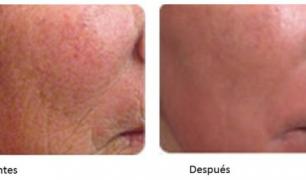 Tratamiento revolucionario antiarrugas