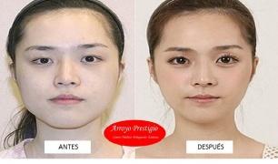 Cirugías plásticas en China