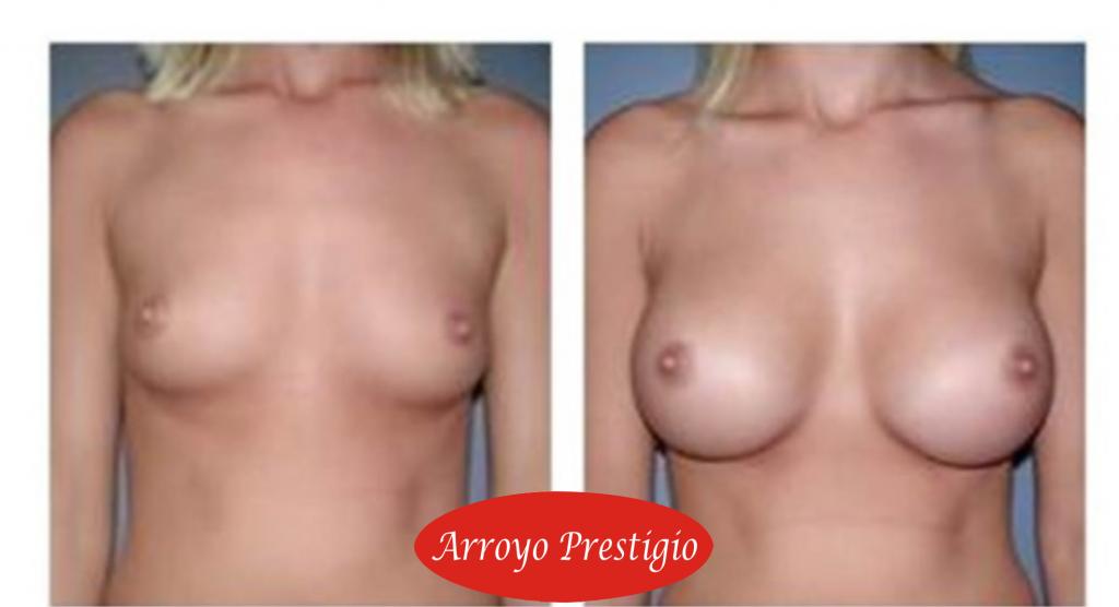 mamoplastia-protesis mamarias