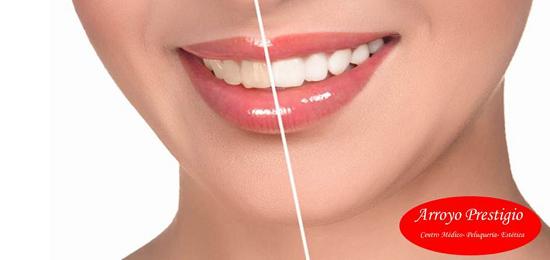 blanqueamiento-dientes