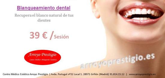 oferta-blanqueamiento dental