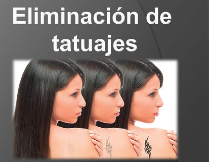 eliminar tatuajes con láser