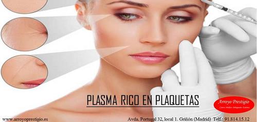 tratamiento-plasma rico en plaquetas